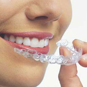 Invisalign aligners are clear and easily removed