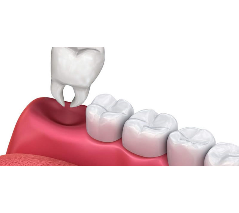 teeth extractions in richmond hill