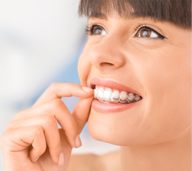 orthodontics in richmond hill